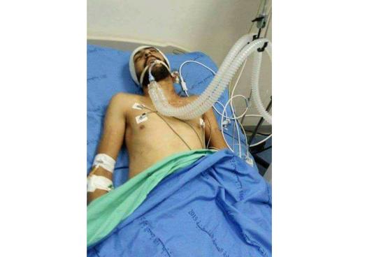 استشهاد شاب من حزما متأثرا بجروح أصيب بها في مواجهات