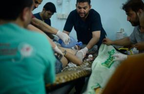 ضحايا جراء قصف الميليشيات الكردية على بلدة #مارع شمالي #حلب