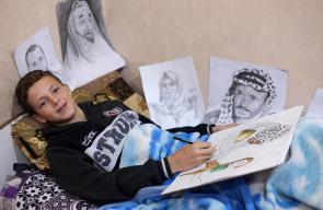 الطفل الفلسطيني مجد المدهون يستعرض لوحاته رغم إصابته برصاص الاحتلال