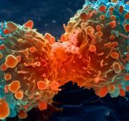 lung-cancer-cell-dividing-article.__v70030169