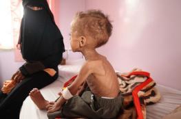"""الأمم المتحدة: الوضع في اليمن """"جحيم"""" وما يحدث لعبة سياسة"""