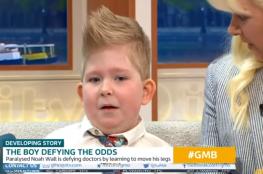 شاهد: طفل يولد من دون دماغ ويتمكن من إكمال نموه
