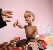 اطفال-اليمن-في-الوضع-المرعب