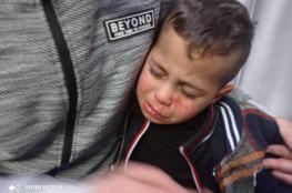 مستوطنون يصيبون طفلا (3 سنوات) بجروح على مدخل برقة شمال شرق رام الله