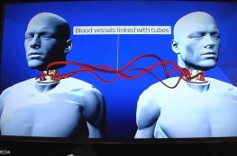 """إجراء أول عملية """"ناجحة"""" لزراعة رأس جثة بشرية"""