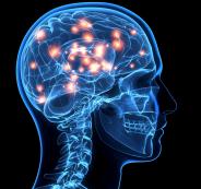 brain-cancer-1