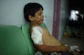 ضحايا جراء القصف المتواصل على حي جوبر وبلدة عين ترما بالغوطة الشرقية
