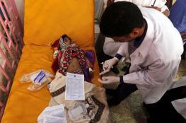 الصحة العالمية: إصابات الكوليرا في اليمن تقترب من 700 ألف حالة