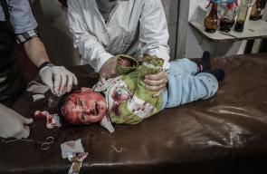 شهداء وإصابات جراء قصف متواصل اليوم على الغوطة الشرقية
