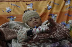 أطفال أصيبوا جراء قصف طائرات النظام السوري على مدينة دوما في الغوطة الشرقية بريف دمشق
