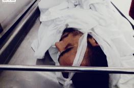 استشهاد مواطن متأثرا بجراح أصيب بها برصاص الاحتلال في مسيرة العودة
