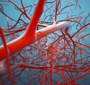 معلومات-عن-أمراض-الأوعية-الدموية