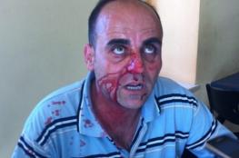 الاتحاد الأوروبي يدعو لفتح تحقيق فوري مستقل وشفاف بحادثة اغتيال الناشط نزار بنات