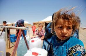 انتشار أمراض جلدية بين النازحين في مخيمات الموصل