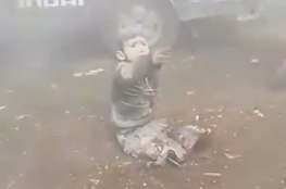 مأساة جديدة لطفل سوري فقد أطرافه بقصف للنظام بريف ادلب