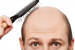 وداعا للصلع.. مادة عطرية تعيد الحياة إلى الشعر!