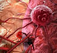 ما_هي_الخلايا_السرطانية