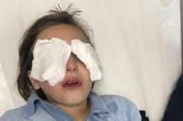 مستوطن يرش 4 طفلات بغاز الفلفل وشرطة الاحتلال تعتقل شابين بالشيخ جراح