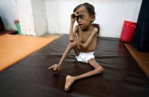 طفل يمني يعاني من سوء التغذية في مدينة الحديدة اليمنية