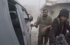 ضحايا جراء القصف المتواصل على مدينة #دوما في #الغوطة_الشرقية