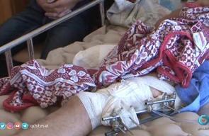 #شاهد | بعد 30 عام من الغربة، بترت قدمه على حدود #غزة تقرير: هنادي نصر الله
