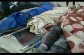 #شاهد كيف يستقبل أهالي الغوطة ساعات الصباح من كل يوم بوضع وصِف بالأكثر دموية في #سوريا تقرير: محمود فايز
