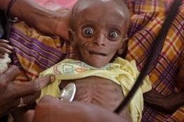 1.4 مليون طفل مهددون بالموت جوعاً خلال 2017