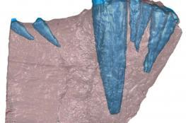 255 مليون عام !! عمر ورم خبيث تم اكتشافه في حدث نادر