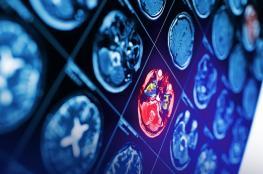"""دراسة تزعم اكتشاف مضاعفات تشبه السكتة الدماغية لدى ضحايا """"كوفيد-19"""""""