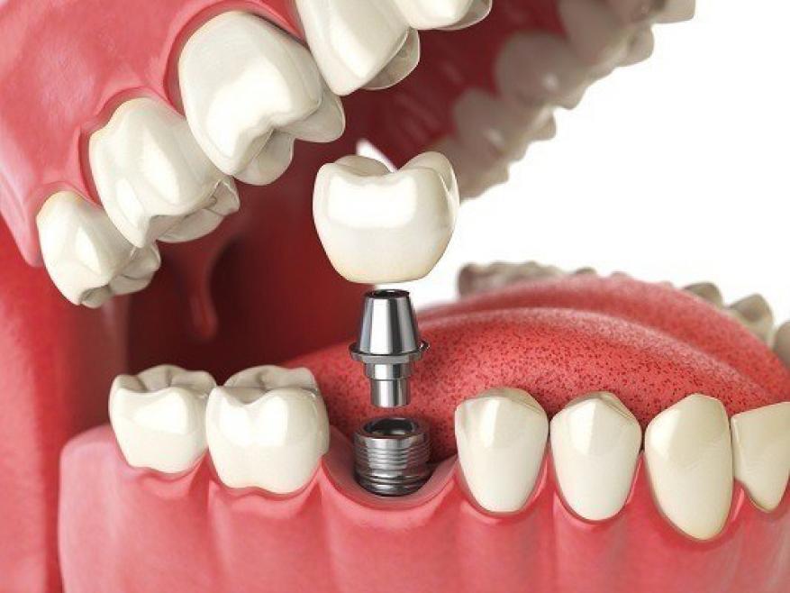 زراعة الأسنان.. كل ما تريد معرفته حول عملياتها وتقنياتها الحديثة