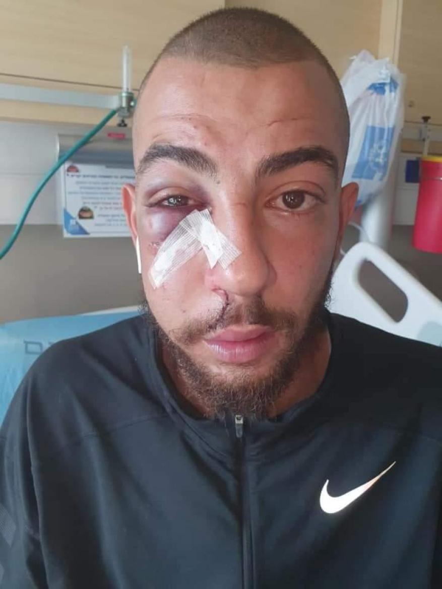 إصابة شاب بجروح وكسور إثر اعتداء الاحتلال عليه في القدس المحتلة