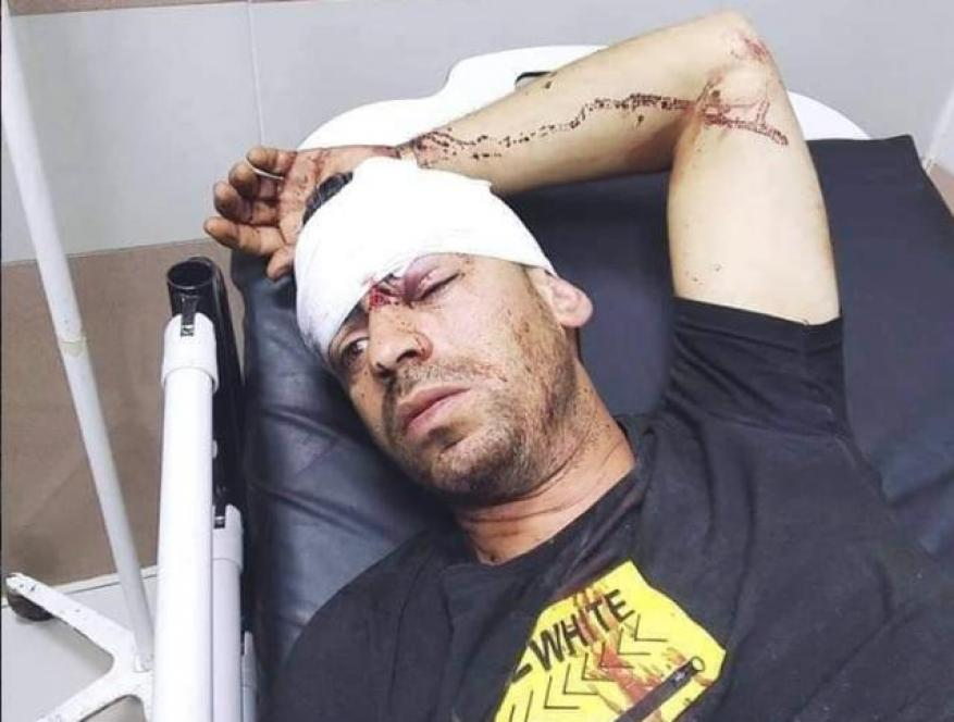 إصابة سائق بجروح متوسطة جراء اعتداء للمستوطنين