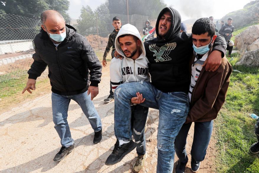 إصابة 3 مواطنين بالرصاص والعشرات بالاختناق شرق رام الله
