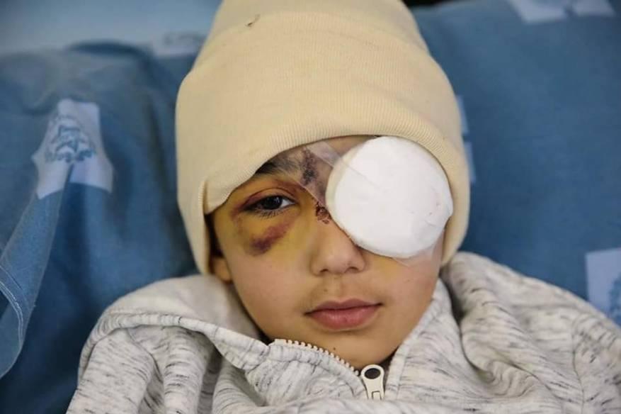 أطباء يقررون استئصال عين الطفل الفلسطيني مالك عيسى