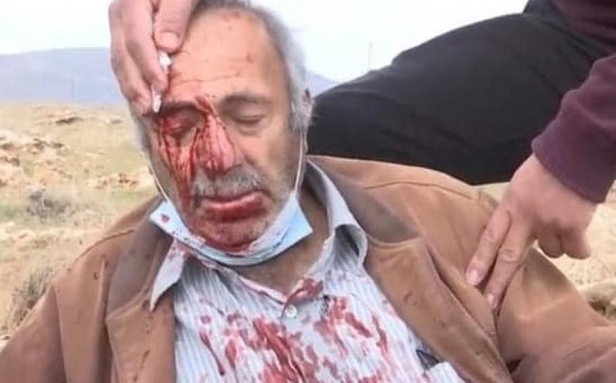 إصابة مسن ونجله بجروح إثر اعتداء المستوطنين على مزارعين شرق نابلس
