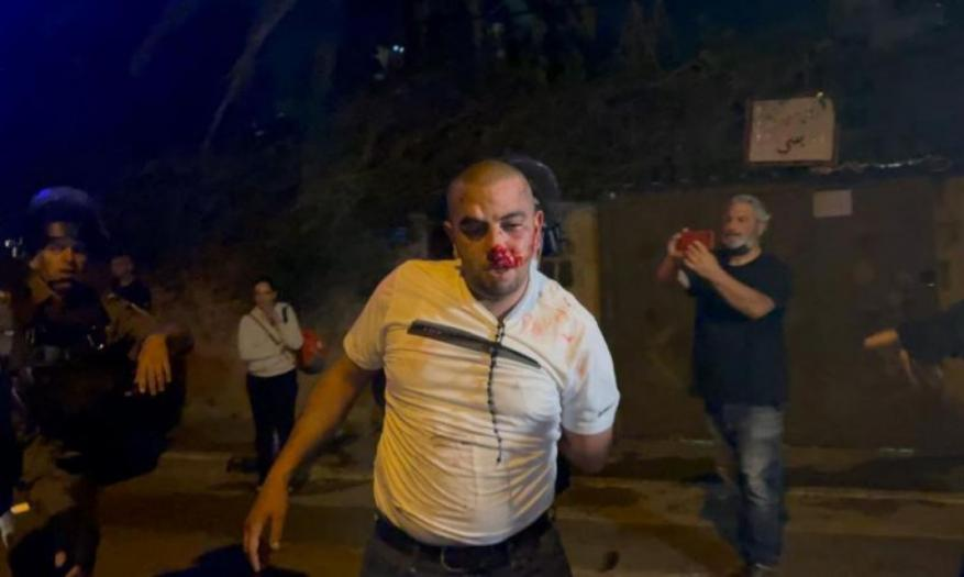 حماس: مشاهد الاعتداء بالشيخ جراح تُدلل على همجية الاحتلال