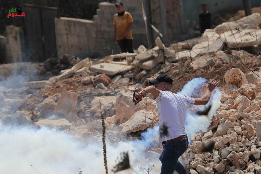 إصابة 7 مواطنين بينهم صحفي بالرصاص والعشرات بالاختناق في مسيرة كفر قدوم