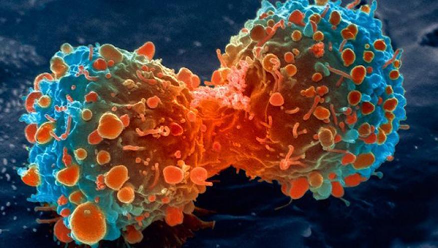 """وقاية طبيعية.. كيف تحمي نفسك من خطر """"السرطان"""" ؟!"""