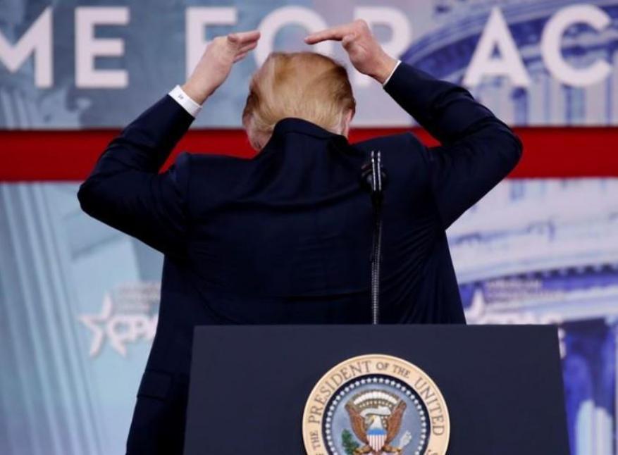 ترامب منزعج بسبب بوادر صلع!
