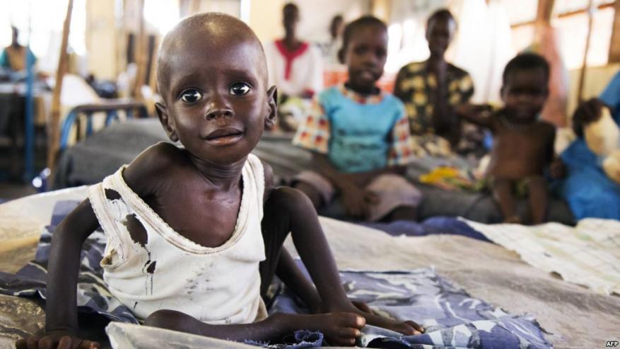مجلس الأمن: المجاعة تهدد 20 مليون شخص باليمن ودول أفريقية
