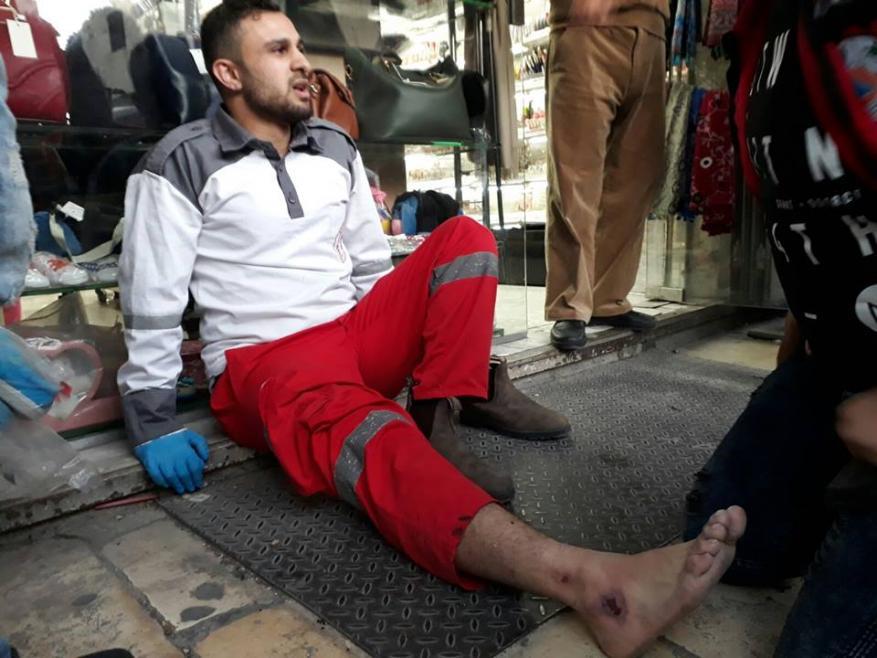 4 إصابات باعتداء الاحتلال على مسيرة في القدس