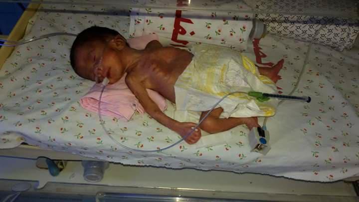 ولد في الشهر السادس.. انقاذ حياة مولود غزي انتظرته والدته لـ 5 سنوات -  وكالة شهاب للأنباء - أخبار فلسطين
